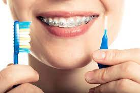 The Indisputable Benefits of Braces